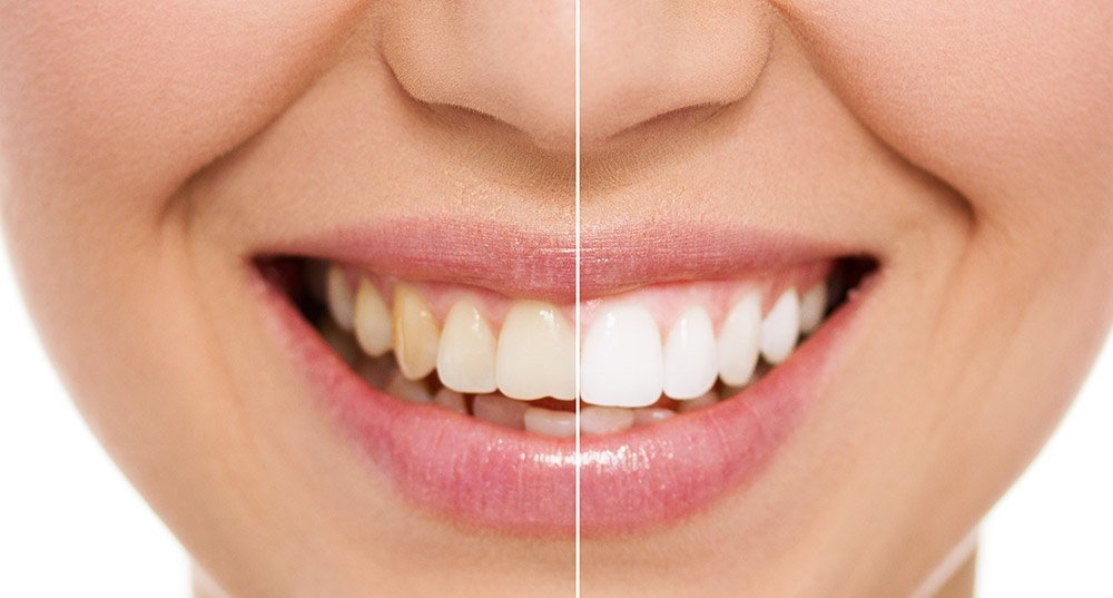 Professional teeth whitening at Larkham House Dental Practice