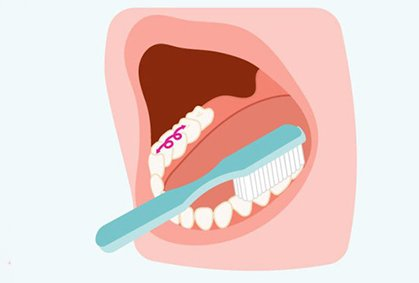 Brushing bottom chewing surface of teeth